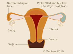HYDROSALPHINX | Dr  Jyothi's Fertility & IVF Centre